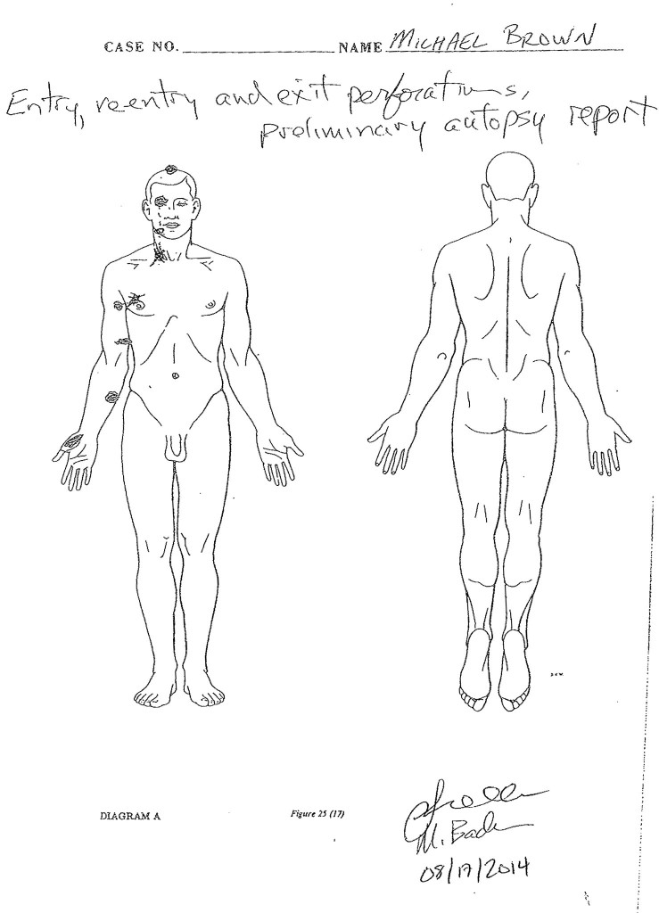brownautopsy